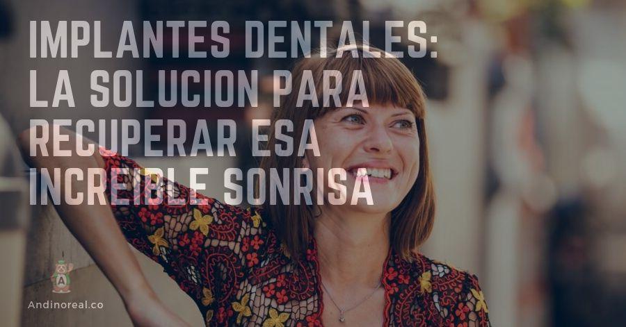 Implantes dentales Bogotá: la solución para recuperar esa increíble sonrisa